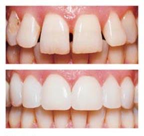 straight teeth glasgow